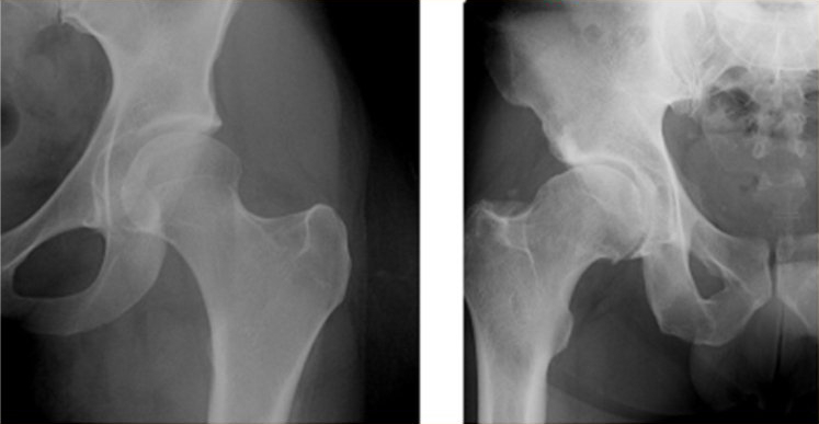 Osteoporosis Protocol Review XRay Hip Images
