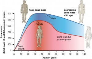 Treatment For Osteoporosis Age and Bone Mass Comparison